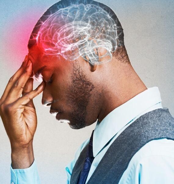 Aneurismas e outras malformações vasculares do Sistema Nervoso Central