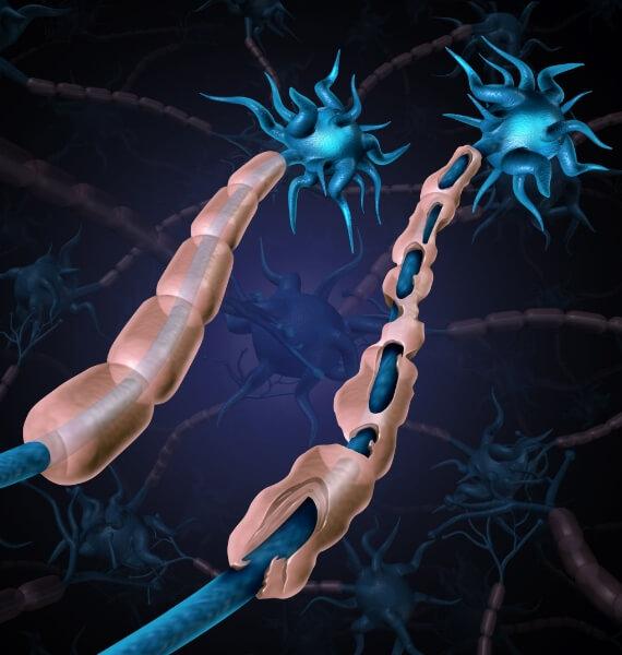 Doenças Desmielinizantes Inflamatórias do Sistema Nervoso Central