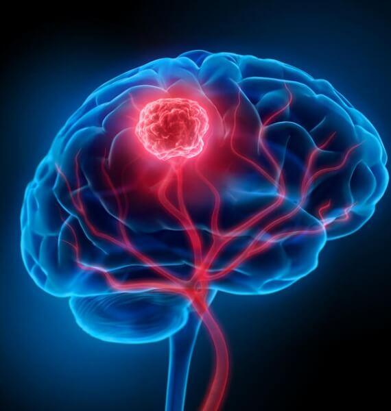Tumores do Sistema Nervoso Central
